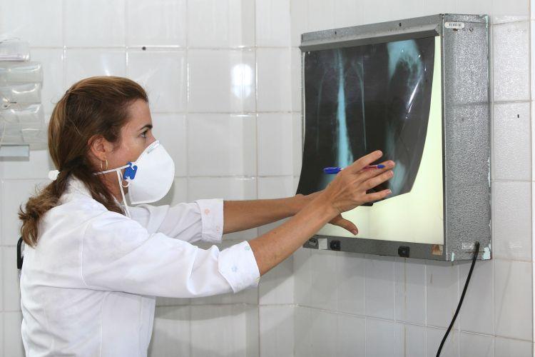 Tuberculose volta a crescer no Brasil